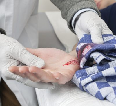Doctor removing a  tea towel, used as temporary bandage from a bleeding cut on a patient's hand